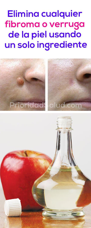 Elimina cualquier fibroma o verruga de la piel utilizando vinagre de manzana. Mira cómo hacerlo.