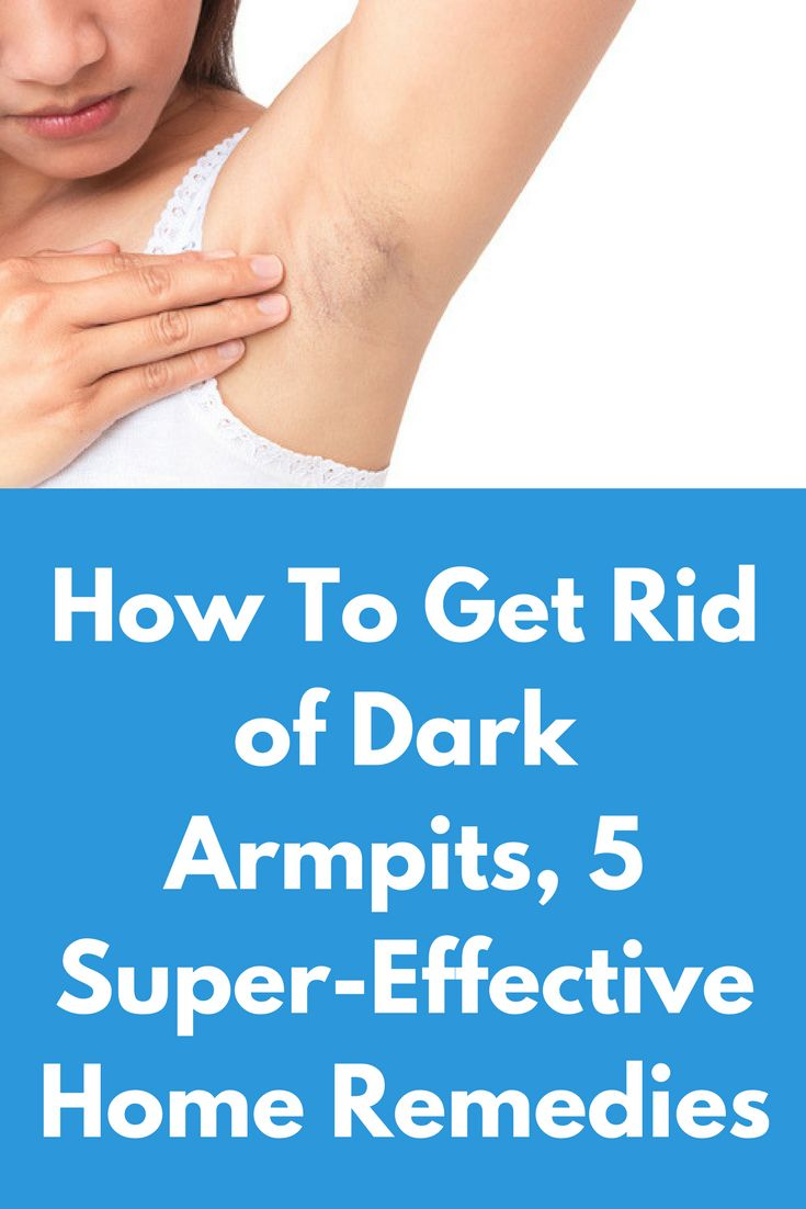 How To Get Rid of Dark Armpits, 5 Super-Effective Home Remedies We all love wearing tops and tunics without sleeves, as such clothes not only save us from sweating but also make us look attractive. But you might think twice before wearing such clothes if you have dark armpits! Dark armpits can be caused due to excessive sweating, pimples, pigmentation etc. Since summers will be here …