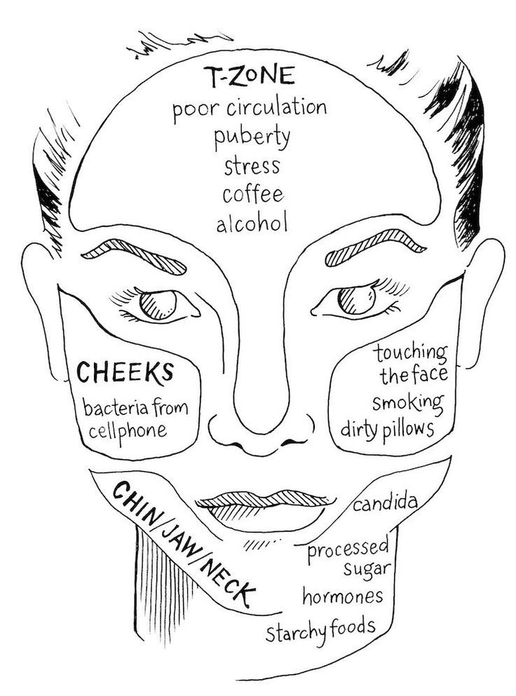 "The Ayurvedic T – Zone : Breakout Areas face map above illustrates a way of examining breakout areas on the face and their possible causes. "" In Ayurveda, where we break out, rash, wrinkle, and get dry is a direct line to establishing cause, and hopefully cure. Addressing imbalances in the body through diet is […]"