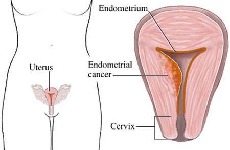 Post Menopausal Bleeding Common Causes