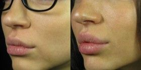 Lips with Juvederm - my next mission!  I actually got Elgin in board with this idea! So excited! !