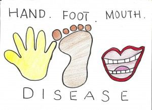Natural Ways To Prevent Hand Foot And Mouth