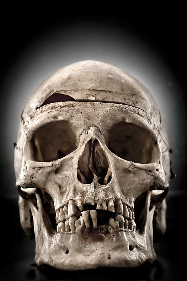 Real Skull, Anatomy Photography, 8x12 Fine Art Print, Desaturated, Bone, Dark, Macabre - My Thick Skull. $30.00, via Etsy.
