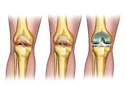 Surgeons advise that when pain persists and movements are restricted, it has to be attended to immediately by a specialist or it can become worse.