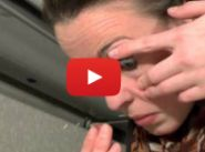 Insertion and removal of scleral contact lens