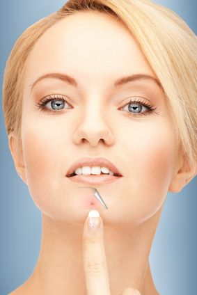 how to clear hormonal chin acne