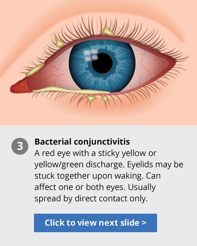 3 Types Of Pink Eye Conjunctivitis Treatments Eye Color
