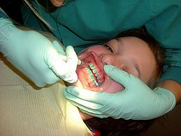 Prepare on the Day You Get Braces · My baby gets braces today, 1st day of Aug.