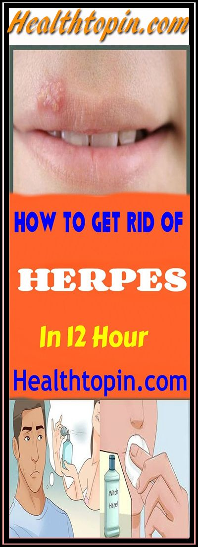 BEST HOME REMEDY TO GET RID OF HERPES IN 12 HOURS #health #herpes #skin #beauty #remedy