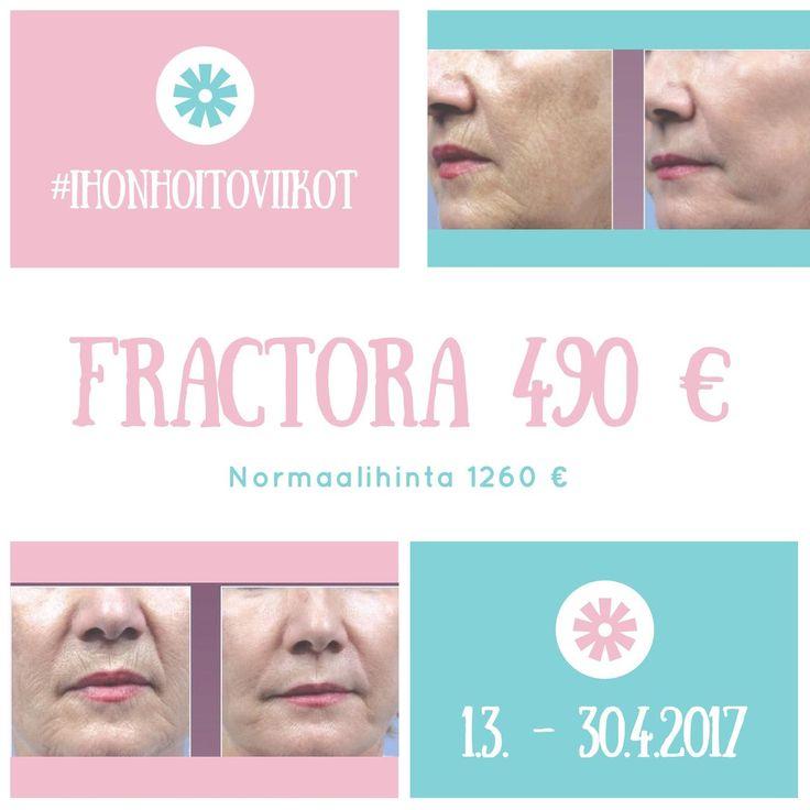 Cityklinikan ihonhoitoviikot 1.3. - 30.4.2017. Koko kasvojen Fractora vain 490 € (norm. 1260 €).  p. 0201 777 288 - ajanvaraus@cityklinikka.fi