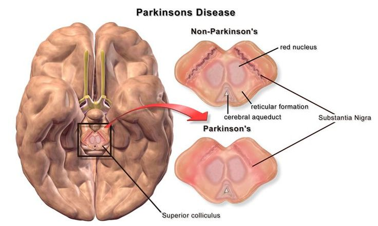 New potential treatment for Parkinson's shows promise! This image shows a brain with a cut away of the substantia nigra.