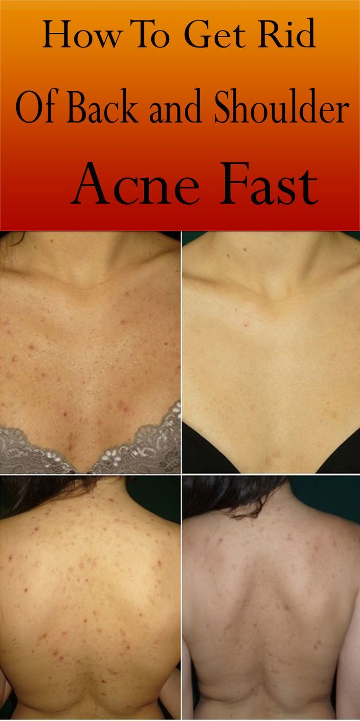 How To Get Rid Of Back And Shoulder Acne Fast Shoulder Acne Acne Acne Problem