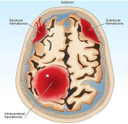 Etiological Factors and Evolution of Intracranial Hemorrhage in Term New-borns
