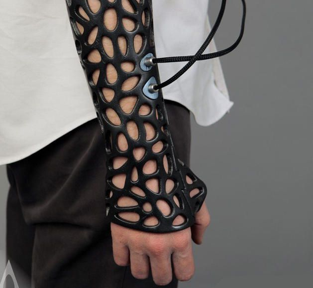 3D-printed cast uses ultrasound to speed healing - CNET - A stylish-looking 3D-printed cast for broken bones uses an ultrasonic pulse generator to help stimulate the growth of new bone.