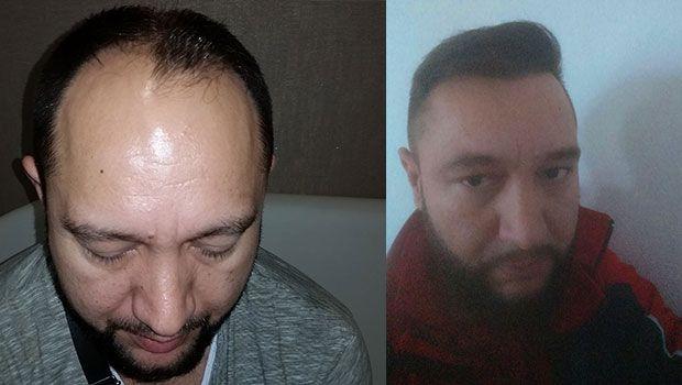 Hermes Hair Transplant Clinic Sac Ince Saclar Hermes