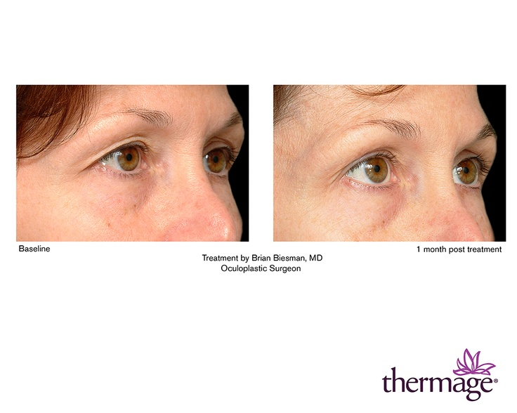 Thermage Augenbehandlung Augen Lifting Www Aestheso De