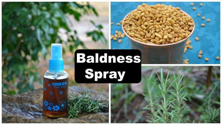 Baldness Cure Hair Regrowth Spray For Men & Women | Alopecia Treatment A...
