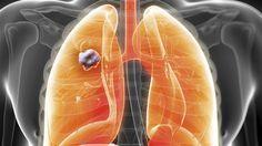 Cette plante détruit 86% des cancers du poumon et du sein
