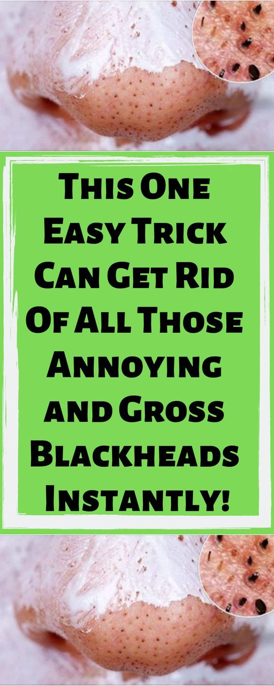 Get Rid of All Those Annoying And Gross Blackheads Instantly! Here's How…