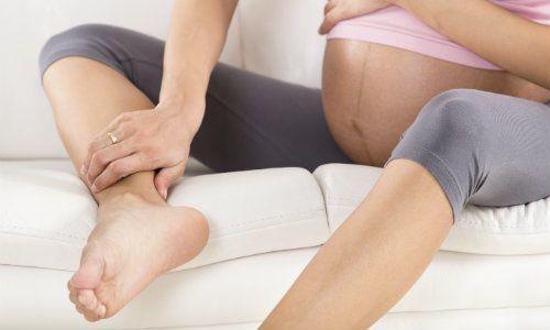 Evita las várices durante el embarazo con este remedio casero. ¡Funciona!