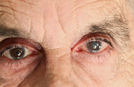 One of the most common eye diseases is cataracts. There are many natural cures and cataract home remedy that can help you to improve your eyesight