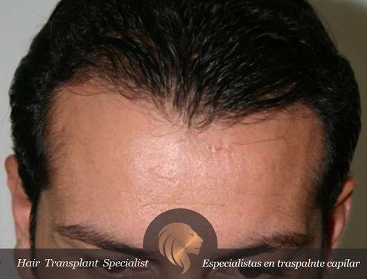 El uso de la técnica FUE es ideal para el trasplante capilar que persiga aumentar la densidad del cabello en áreas pequeñas, como pueden ser patillas, barbas, cejas e, incluso cubrir cicatrices. https://goo.gl/4lN3gK