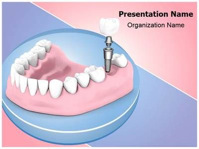 33 best dental powerpoint templates backgrounds images on download our professionally designed dental implant ppt template this dental toneelgroepblik Choice Image