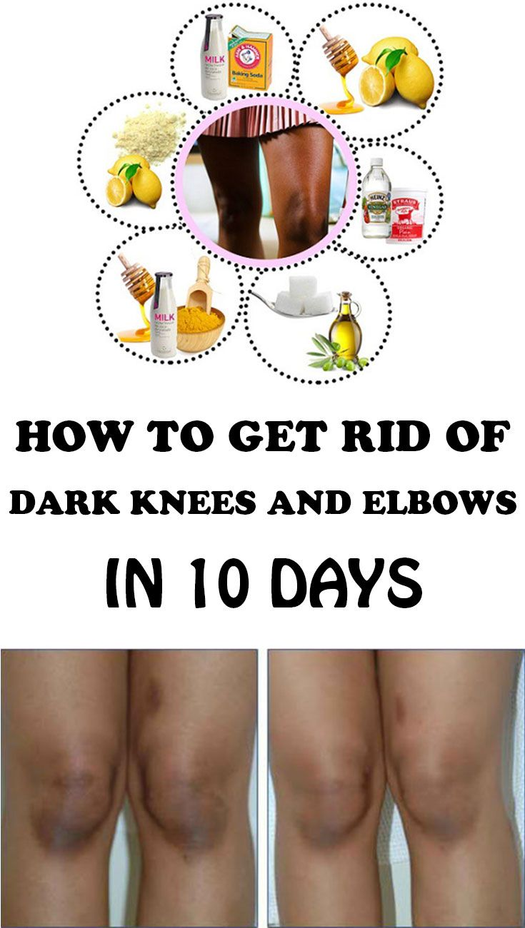 How one can Get Rid of Darkish Knees and Elbows in 10 Days