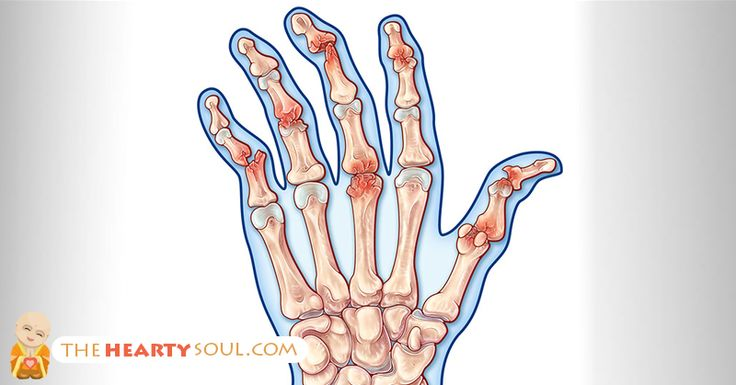 There are over 100 different types of arthritis, ranging from mild to quite severe. Arthritis commonly effects the joints as a result of inflammation....