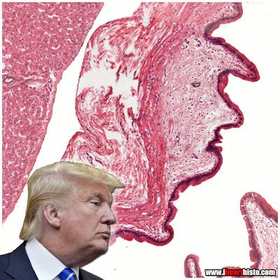 Trump in Gallbladder - Time for a cholecystectomy?