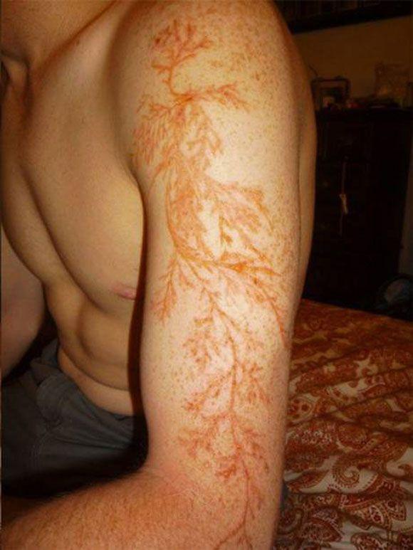 raio-sobrevivente Temporary marks caused by a lightning