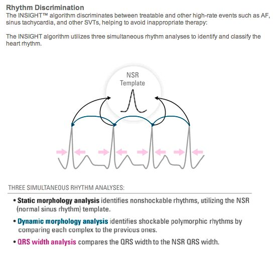 S-ICD - Subcutaneous Implantable Cardioverter Defibrillator - Boston Scientific