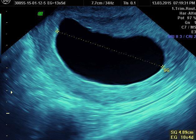 91a852e30 Embarazo Anembrionico