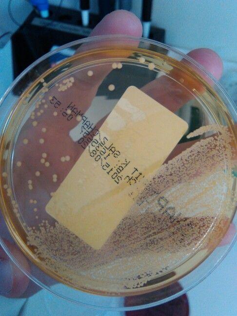 Stafilococcus aureus Urinocoltura Chapman