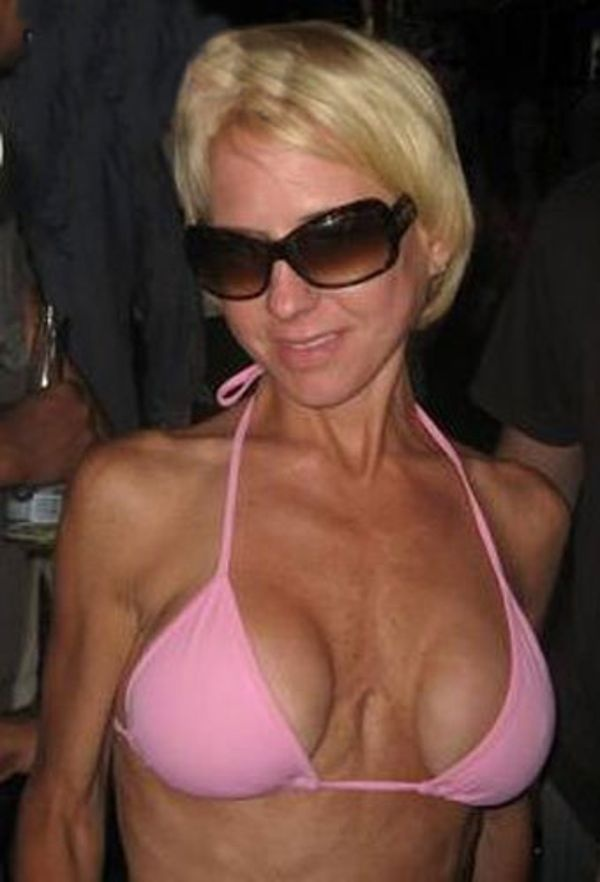 Pictures of breast implants gone bad crofton