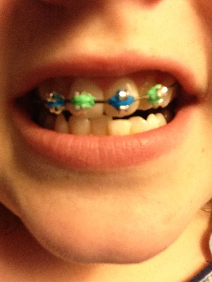 Fake Braces With Bobby Pin And Earing Backings Braces