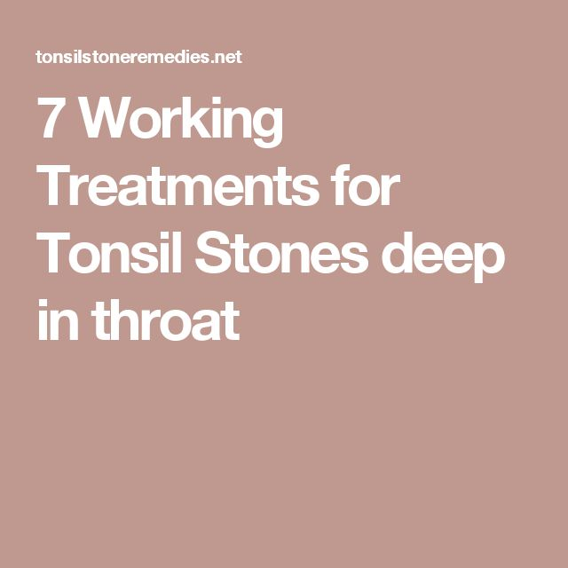 7 Working Treatments for Tonsil Stones deep in throat