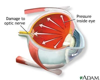 Definition Is a condition marked by high intraocular pressure (IOP) that damages the optic nerve. TYPES: Chronic open-angle glaucoma Results from the gradual deterioration of the trabecular network that, as in the acute form, blocks drainage of aqueous humor and causes IOP to increase. If untreated, may result in degeneration of the optic nerve and visual field loss. It isRead more