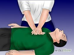 How to do CPR on an Adult