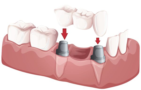 If necessary, Dr. Dean Salo can use a tooth prosthesis to replace missing teeth.