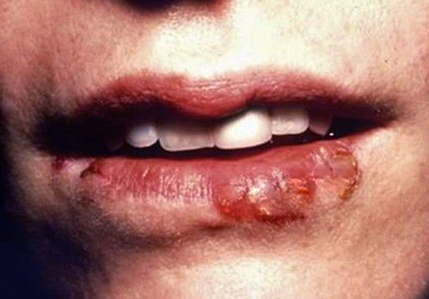 How To Get Rid Of Mouth Blisters Naturally