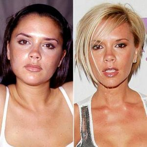 4 sztár a jól sikerült plasztika előtt és után #Victoria Beckham