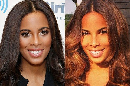 Rochelle Humes before and after nose job