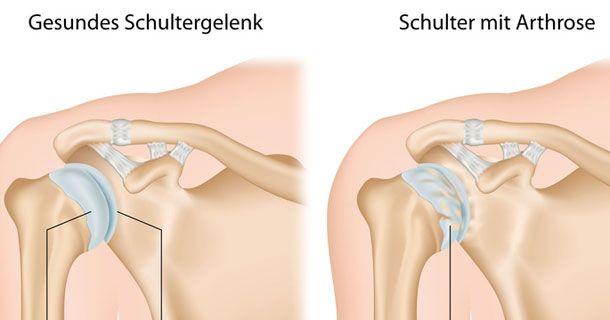 Die Arthrose ist die häufigste Gelenkerkrankung: Dabei nutzt sich der Knorpel langsam fortschreitend ab und es entstehen Verschleißerscheinungen an den Gelenken. Durch den Verschleiß werden im Laufe der Zeit auch die Knochen, Muskeln und Bänder in Mitleidenschaft gezogen. Die Folgen sind Gelenkschmerzen. Häufig sind die Hände, Knie- und Hüftgelenke betroffen, grundsätzlich kann die Arthrose aber in jedem Gelenk auftreten. Als Risikofaktor gilt das Alter.