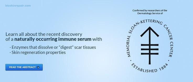 Scar Removal, Keloid Scars, Keloids - Hypertrophic Scarring Treatment Cream
