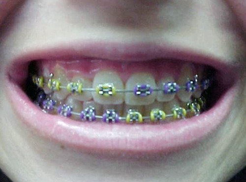 im pinterested in braces--this is the style i like to put on boys...