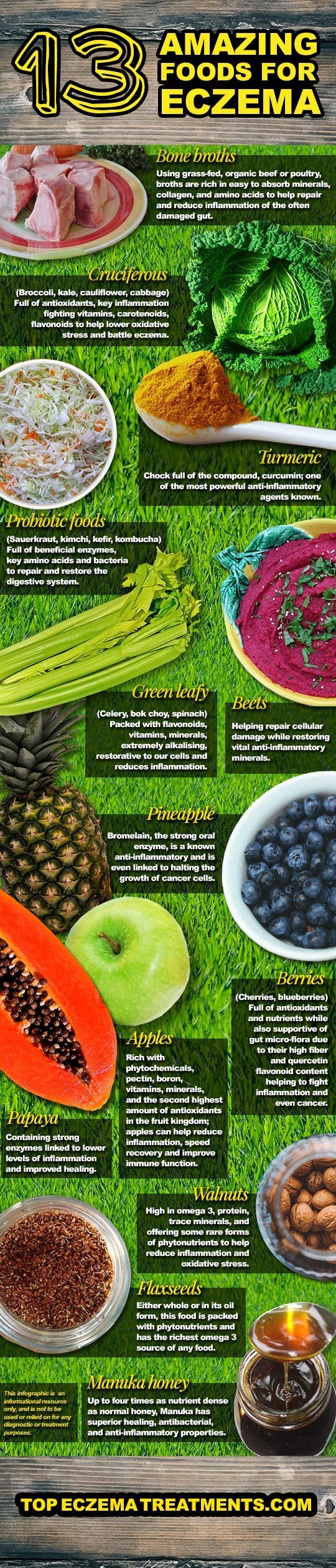 Eczema 13 Amazing Foods for Eczema Sufferers. Eczema Infographic. Visit www.eczemacompa...