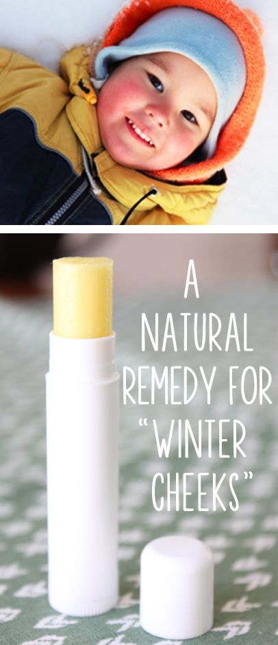 A Natural Remedy For Chapped Quot Winter Cheeks Quot A Natural