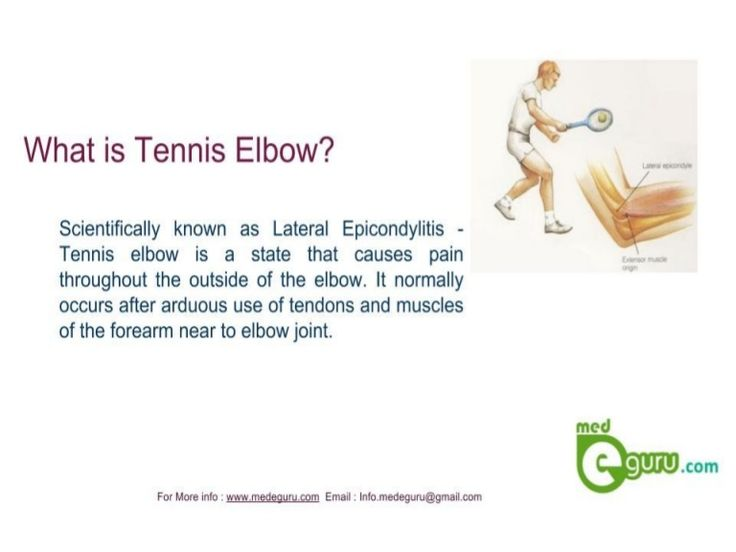 #Tennis Elbow or #lateral Epicondylitis - A State that causes pain throughout the outside of the #elbow. Know More on treatment procedures at medeguru. www.medeguru.com.