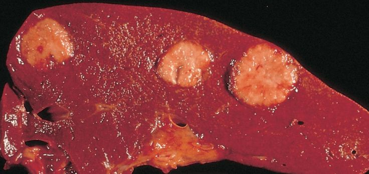 Before of learning what the causes of liver cancer are, you should know what and how cancer happens. Usually, cancer begins in the body if cells start growing in an uncontrolled way.